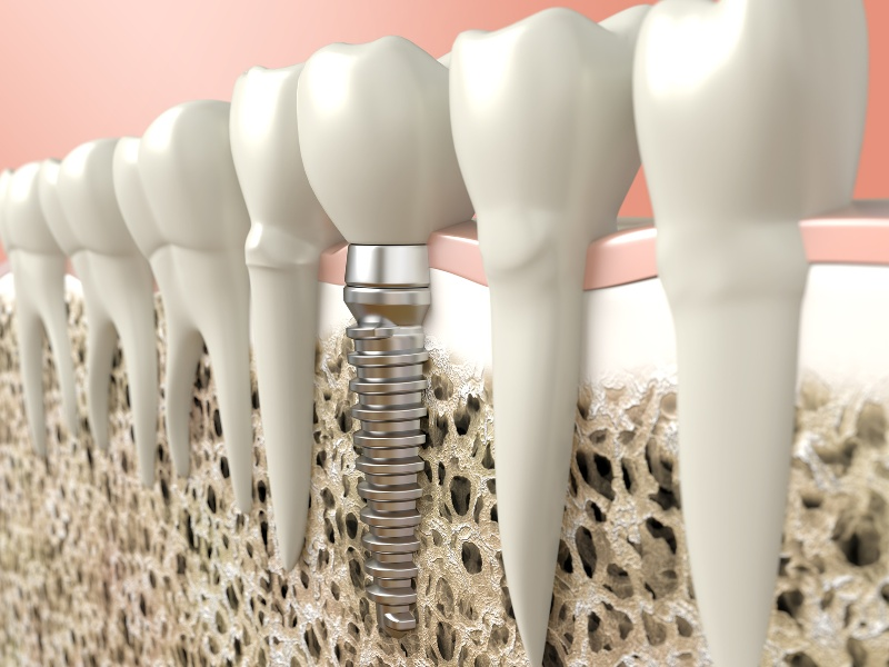 Dental Implants at Simply Smiles