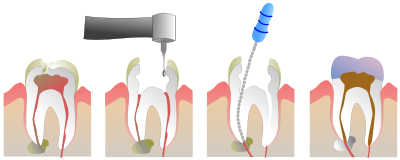 Root Canals at Simply Smiles Dental Clinic